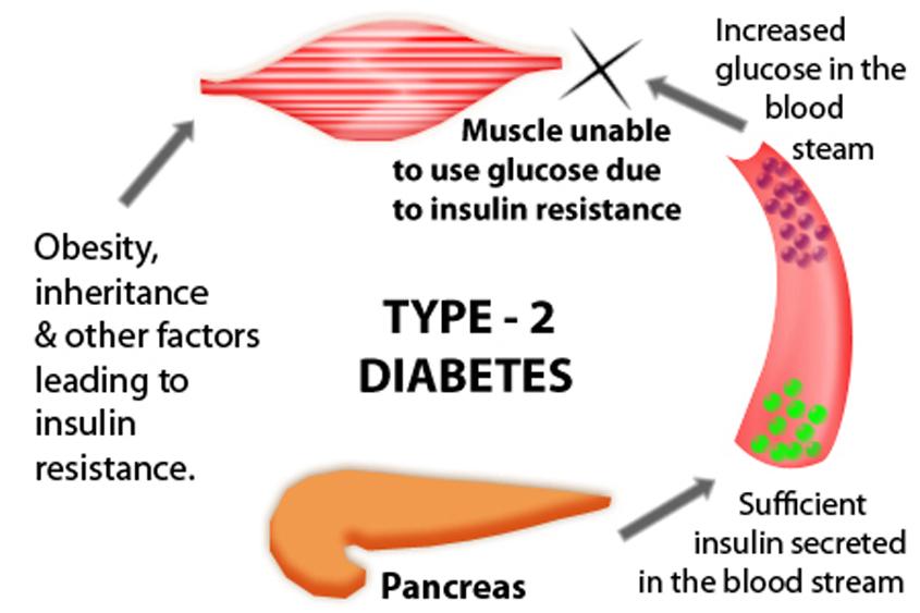 Get screened for diabetes